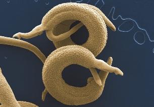 3 paraziti comuni care te mananca de viu   apois.ro - Paraziți de vierme de bumbac la om
